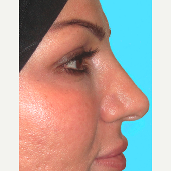 Rhinoplasty after 3814239