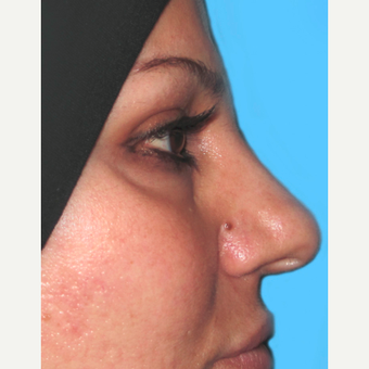 Rhinoplasty before 3814239