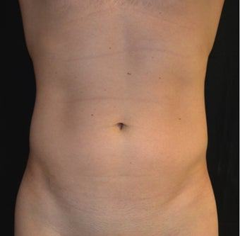30 Year Old Male Treated For Abdominal and Flank Contouring