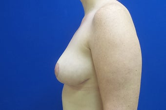 Breast Reduction after 2929670