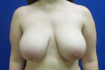 Breast Reduction 2929670