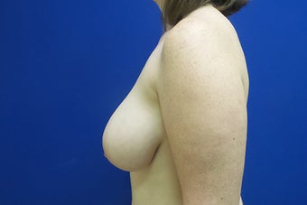 Breast Reduction before 2929670