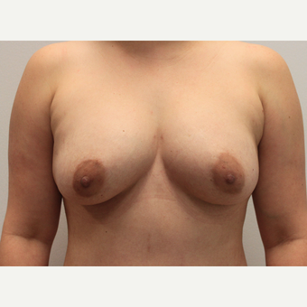 Liposuction of the Abdomen, Abdominoplasty & Fat Transfer to the Breasts after 3581911