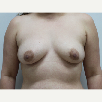 Liposuction of the Abdomen, Abdominoplasty & Fat Transfer to the Breasts before 3581911