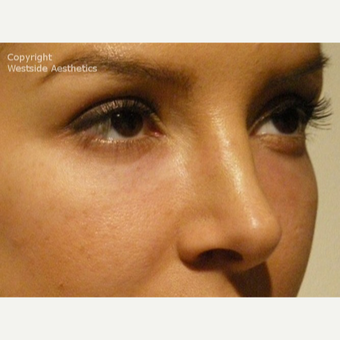 Non Surgical Blepharoplasty Young Woman after 2977509