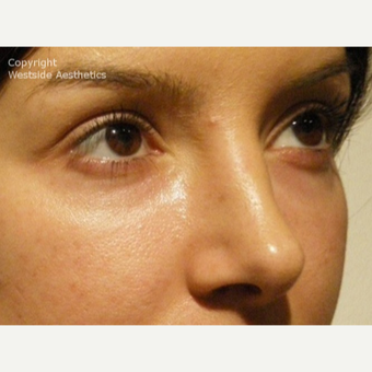 Non Surgical Blepharoplasty Young Woman before 2977509
