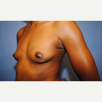 25-34 year old woman treated with Breast Augmentation before 3763098