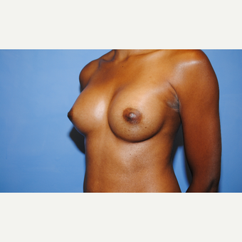 25-34 year old woman treated with Breast Augmentation after 3763098