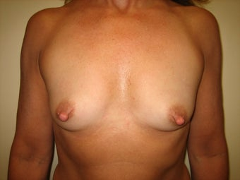 49 year old female before and after breast augmentation before 1374218