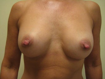 49 year old female before and after breast augmentation after 1374218