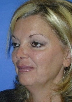 Face Lift for sagging and creases 1093873