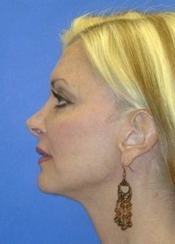 Face Lift for sagging and creases after 1093873