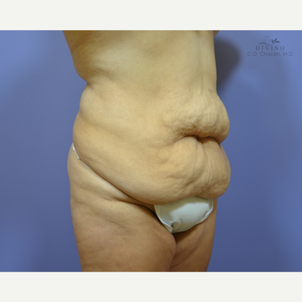 35-44 year old woman treated with Liposuction before 3391528