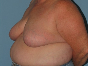 Underwent a Breast Reduction  after 962877