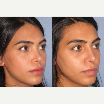 25-34 year old woman treated with Revision Rhinoplasty before 3521347