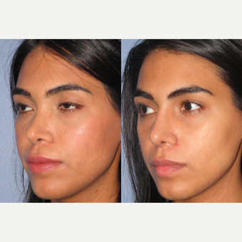 25-34 year old woman treated with Revision Rhinoplasty after 3521347