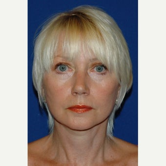 45-54 year old woman treated with Facelift after 2443721