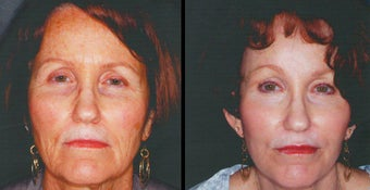 Laser Skin Resurfacing before 1247523