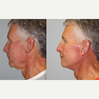 74 year old man treated with Neck Lift after 3263120
