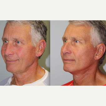 74 year old man treated with Neck Lift before 3263120