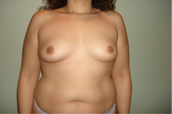Breast Augmentation on a 35 year old Female before 963422