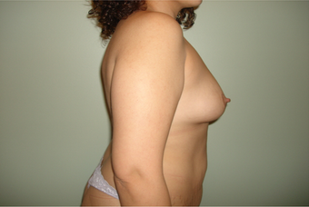 Breast Augmentation on a 35 year old Female 963422