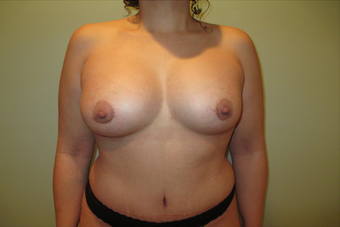 Breast Augmentation on a 35 year old Female after 963422
