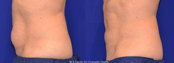 CoolSculpting to Lower Belly Fat before 1412883