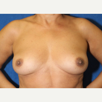 Fat Transfer to Breast (front view)