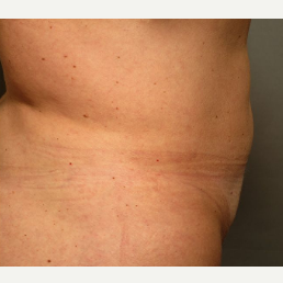 42 Year Old Female with Liposuction Hips and Abdomen after 3094278