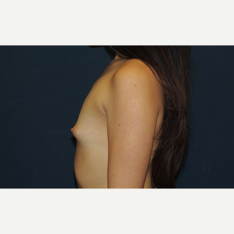 18-24 year old woman treated with Breast Augmentation before 3344916