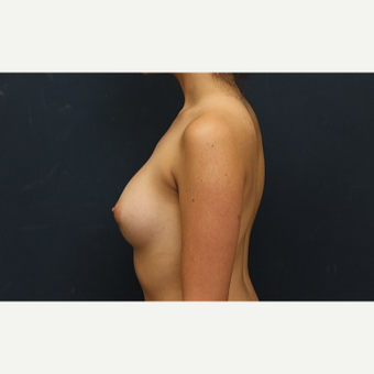 18-24 year old woman treated with Breast Augmentation after 3344916