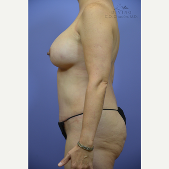 45-54 year old woman treated with Mommy Makeover after 3391828