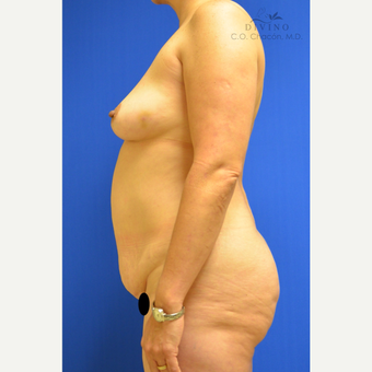 45-54 year old woman treated with Mommy Makeover before 3391828