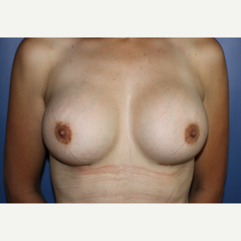 25-34 year old woman treated with Breast Augmentation after 3695379