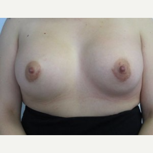 Breast Implant Revision after 3164441