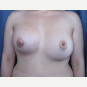 Breast Implant Revision before 3164441