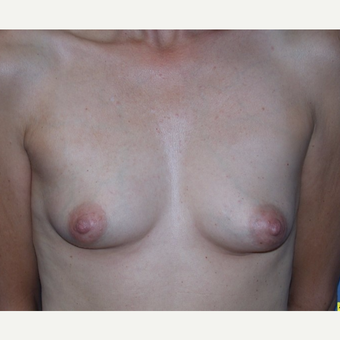 48 year old woman with Breast Augmentation with saline implants before 3588722
