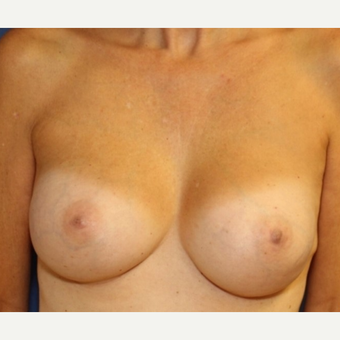 48 year old woman with Breast Augmentation with saline implants after 3588722