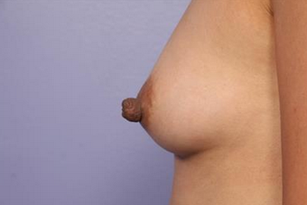 25-34 year old woman treated with Nipple Surgery after 1677426