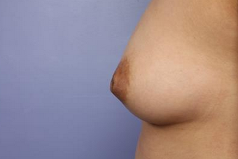 25-34 year old woman treated with Nipple Surgery before 1677426