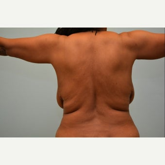 Liposuction of the bra line and flanks in 56 year old patient before 1979390