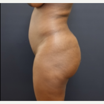 35-44 year old woman treated with Fat Transfer before 3200948