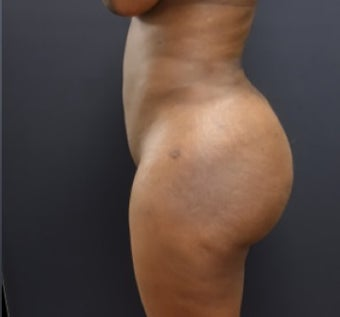 35-44 year old woman treated with Fat Transfer after 3200948