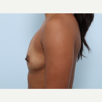 Breast Augmentation before 3459953
