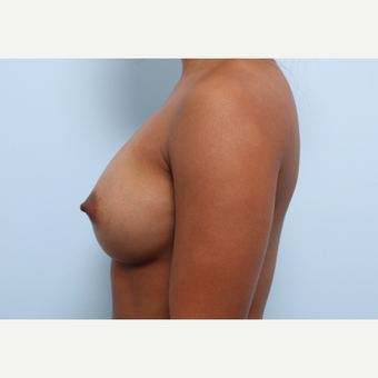 Breast Augmentation after 3459953