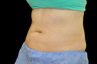 53 Year Old Female treated with Coolsculpting  after 1069746