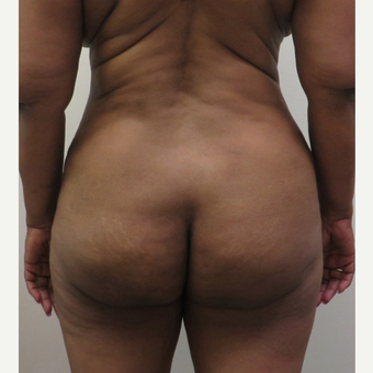25-34 year old woman treated with Brazilian Butt Lift after 3213774