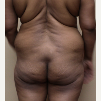 25-34 year old woman treated with Brazilian Butt Lift before 3213774
