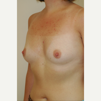 25-34 year old woman treated with Breast Implants before 3854928